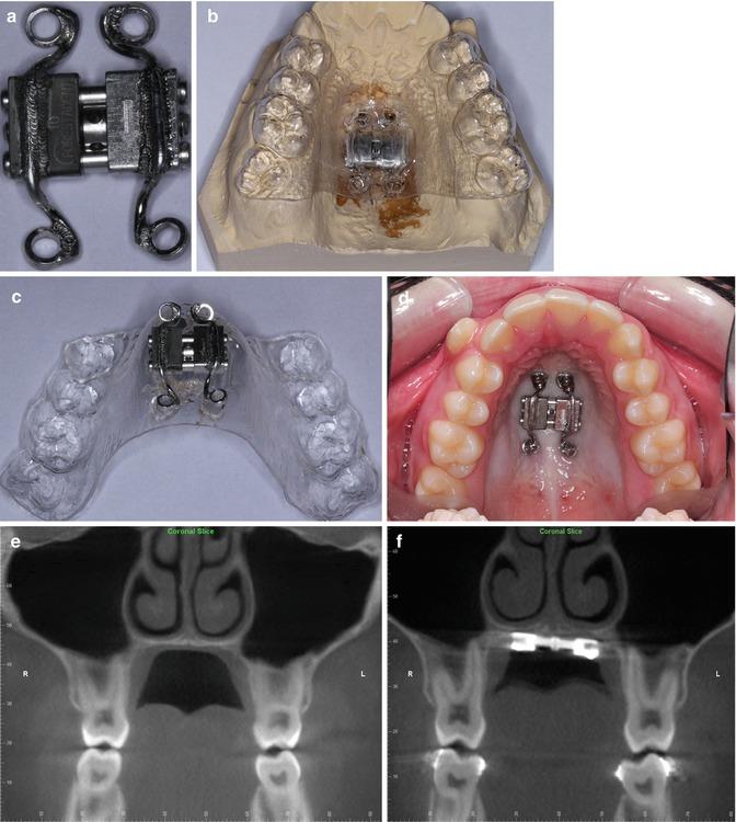 Bone-Anchored Rapid Palatal Expansion | Pocket Dentistry