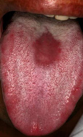 Red Spot On Tongue