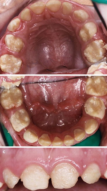 Restorative Management Of Dental Enamel Defects In The Primary Dentition