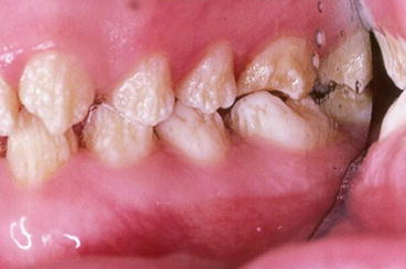 images of permanent teeth