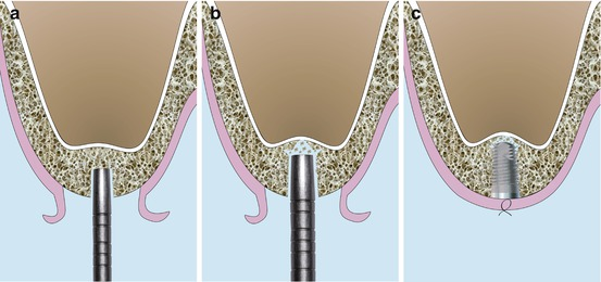 Sinus Floor Elevation Technique : Crestal sinus floor elevation sfe approach overview and