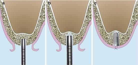 Sinus Floor Elevation Cost : Crestal sinus floor elevation sfe approach overview and