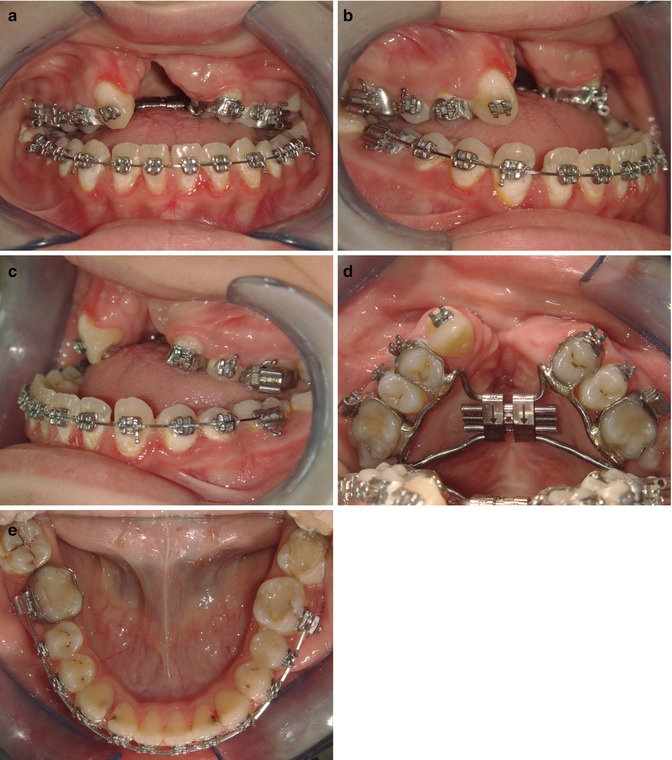 Archwise Distraction Appliance (AWDA) in Cleft Lip and Palate Patient Treatment: Case Reports | Pocket Dentistry