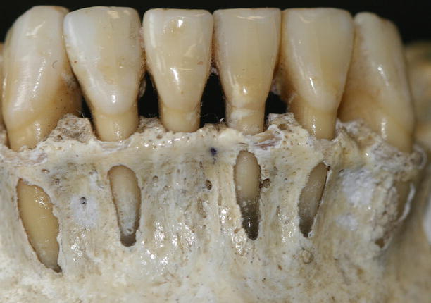 periodontal anatomy and its role on the treatment planning
