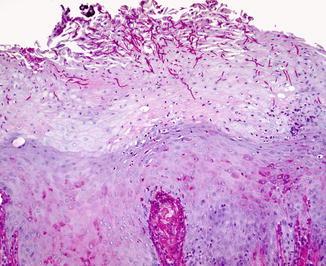 Chronic hyperplastic candidiasis histology