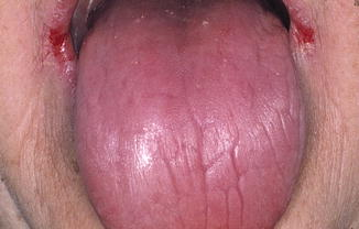 Diseases of the Tongue | Pocket Dentistry