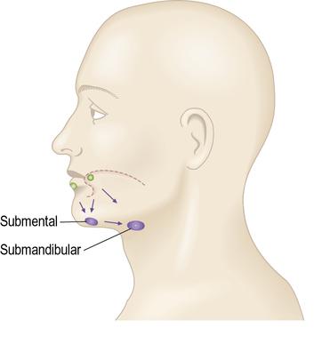 Submental lymph node doritrcatodos submental lymph node ccuart Image collections