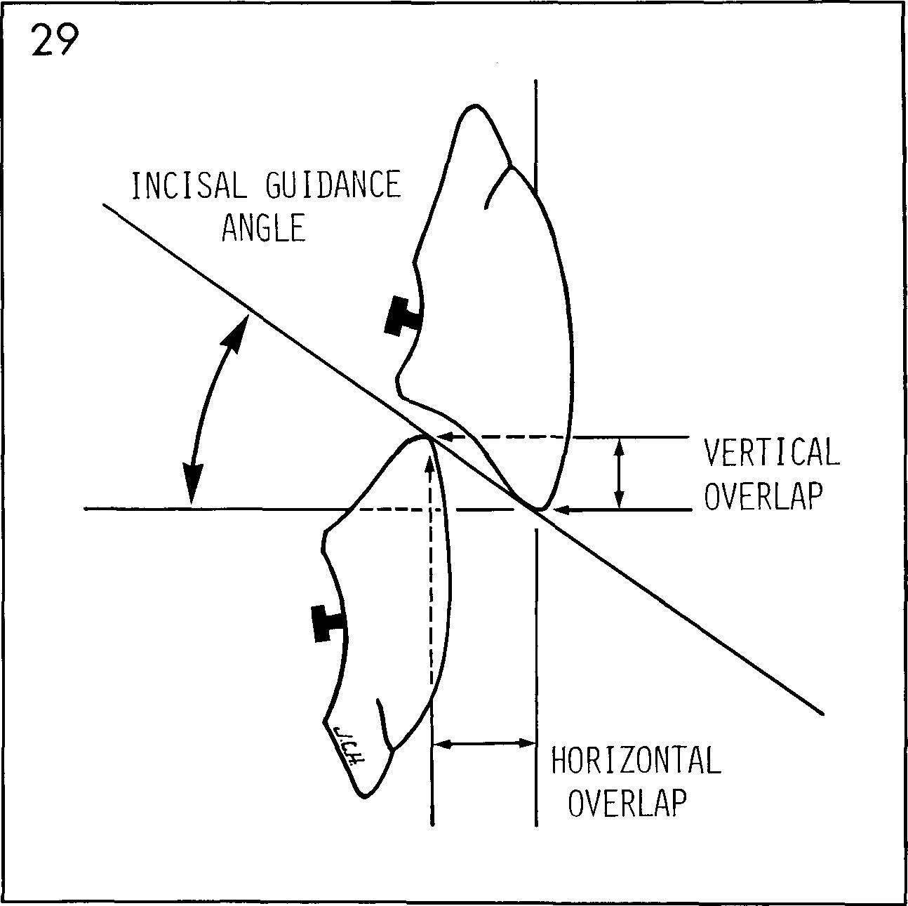 Trapozzano's triad of occlusion. Ig: incisal guidance; ch: cusp.