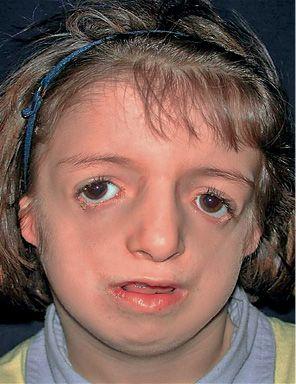 Facial anomalies syndrome