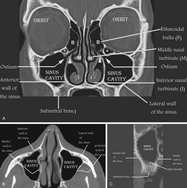 Maxillary sinus ct anatomy