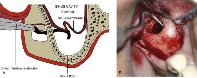 Sinus Grafting For Dental Implants Pocket Dentistry