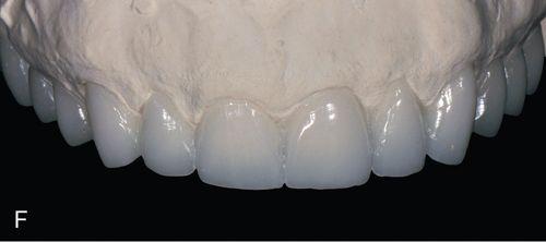 Porcelain Laminate Veneers Restorations Pocket Dentistry
