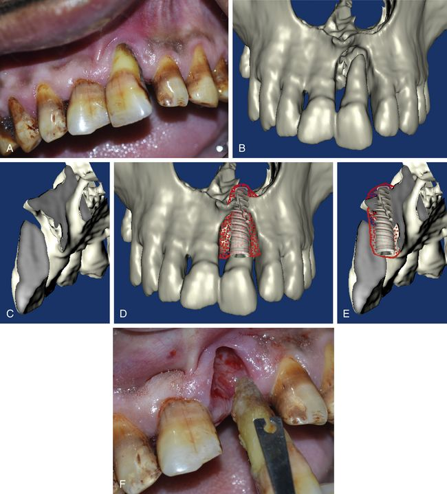 Nasal Floor Elevation : Nasal floor elevation and grafting pocket dentistry
