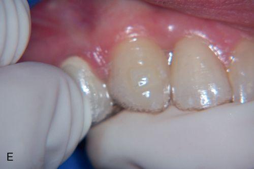 esthetics and orthodontics