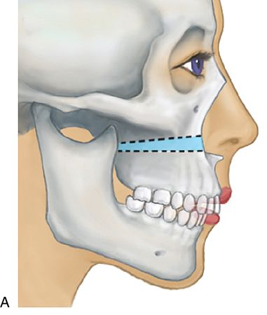 Esthetics and oral and maxillofacial surgery | Pocket Dentistry
