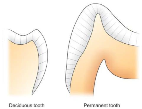 Dental caries pocket dentistry ccuart Gallery