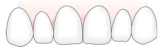 Principles of Tooth Preparation | Pocket Dentistry