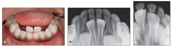 management of incisor crowding