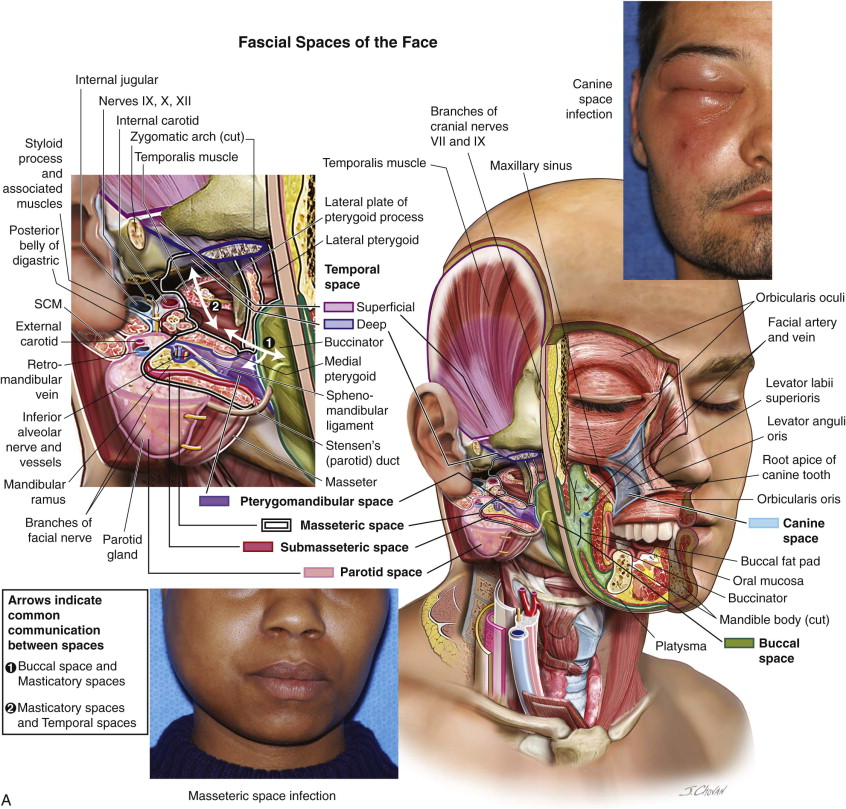 Fascial Spaces Of The Head And Neck Pocket Dentistry