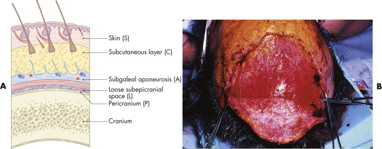 Damage facial soft subcutaneous tissue