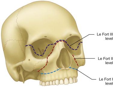 Etiopathogenesis/Causative Factors. Le Fort fractures ...