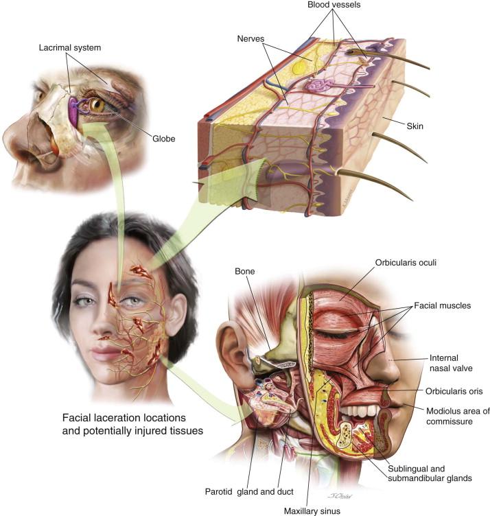 Suturing facial lacerations emedicine