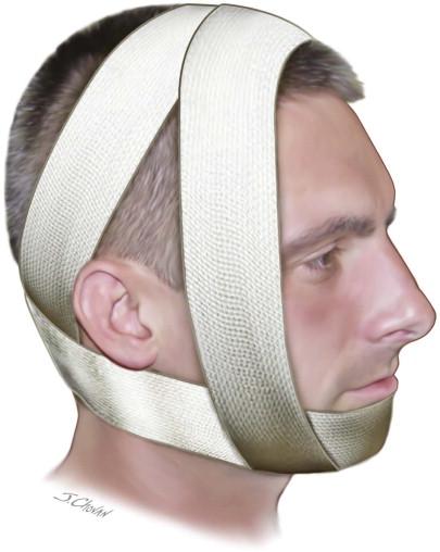 Barton Bandage Techniques for Maxillo...