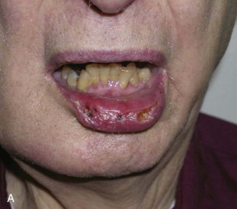 lip cancer ablative and reconstructive surgery pocket dentistry