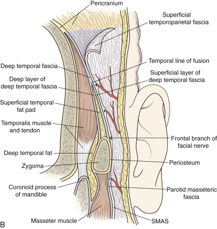 The Temporalis System Of Flaps In Head And Neck Reconstruction