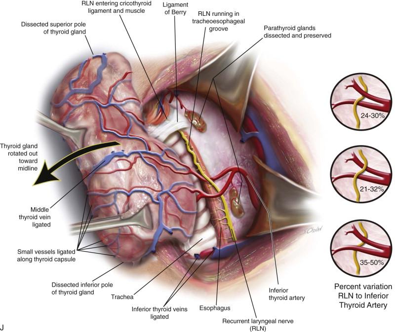 Thyroidectomy | Pocket Dentistry