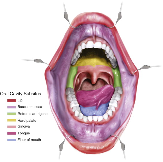 Local Excision of Oral Malignancy | Pocket Dentistry