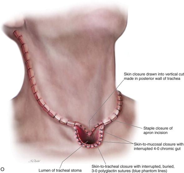 Laryngectomy   Pocket Dentistry