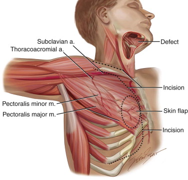 Pectoralis Major Myocutaneous Flap | Pocket Dentistry