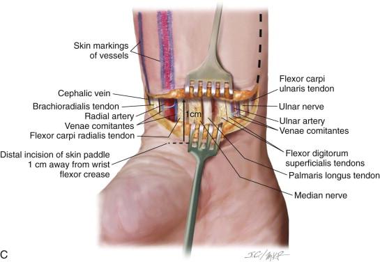 radial forearm flap   pocket dentistry, Cephalic Vein
