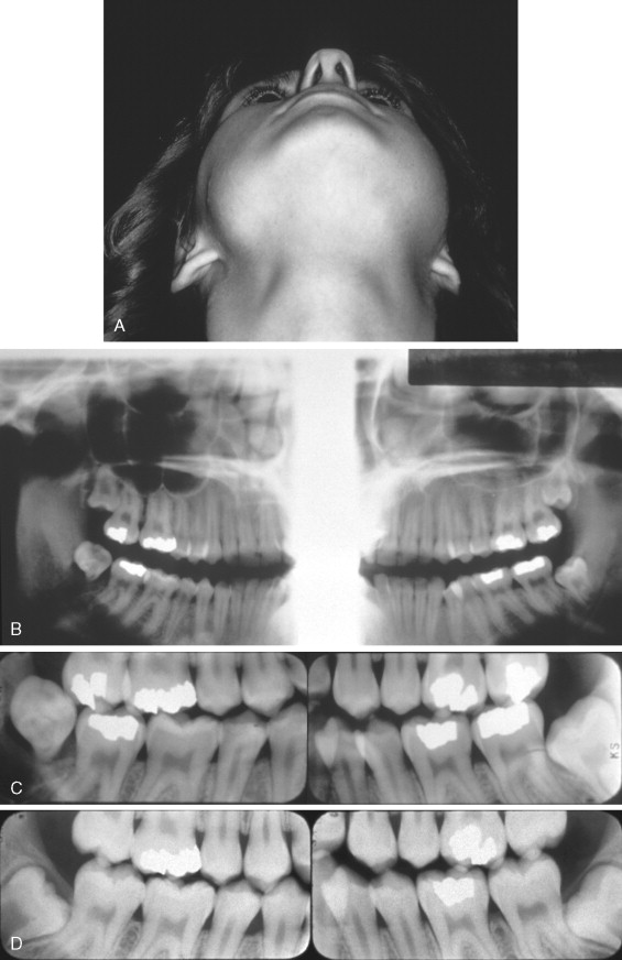 Sarcoma cancer jaw. Hpv virus how is it transmitted