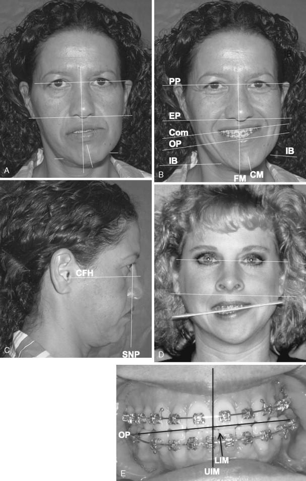 causes of facial asymmetry