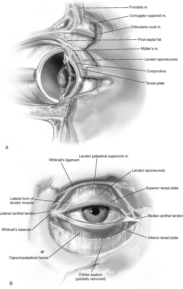 BLEPHAROPLASTY | Pocket Dentistry
