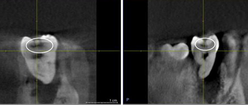Cone Beam Ct Diagnostic Applications Caries Periodontal