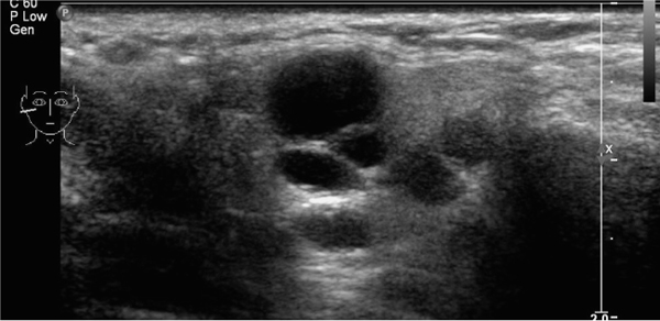 ultrasound guided needle biopsy neck