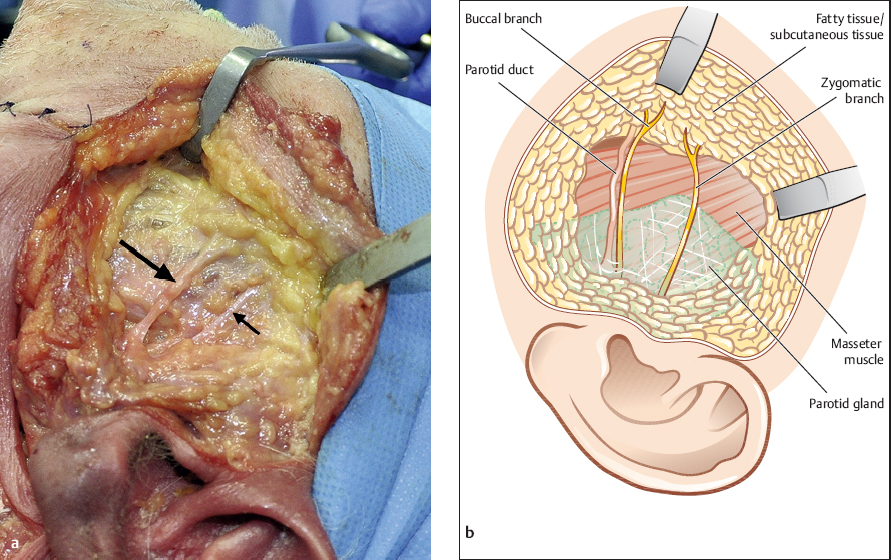 Trauma-Induced Problems in the Salivary Glands | Pocket Dentistry