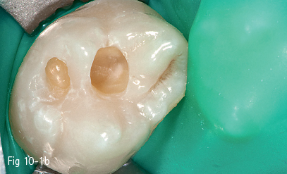 Esthetic Restoration Of Posterior Teeth Pocket Dentistry