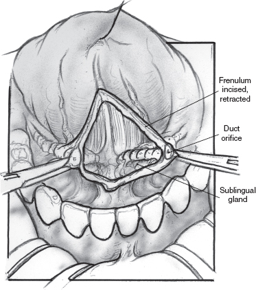 Pediatric Salivary Gland Disease