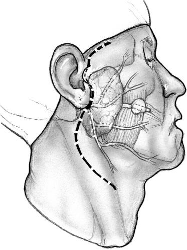 Atlas Of Salivary Gland Surgery