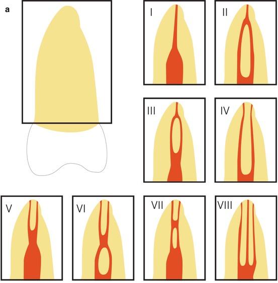 Molar Root Canal Anatomy   Pocket Dentistry