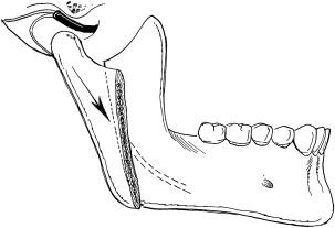 Modified Condylotomy for Temporomandibular Joint Dysfunction   Pocket  Dentistry