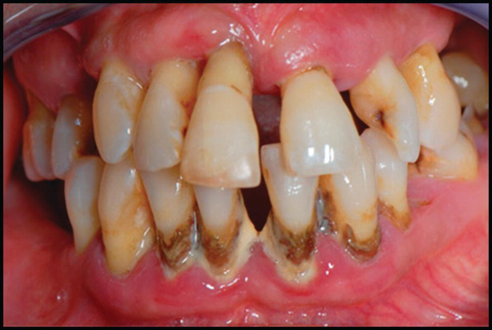 Photo of teeth with 4 incisors displaying periodontal disease.
