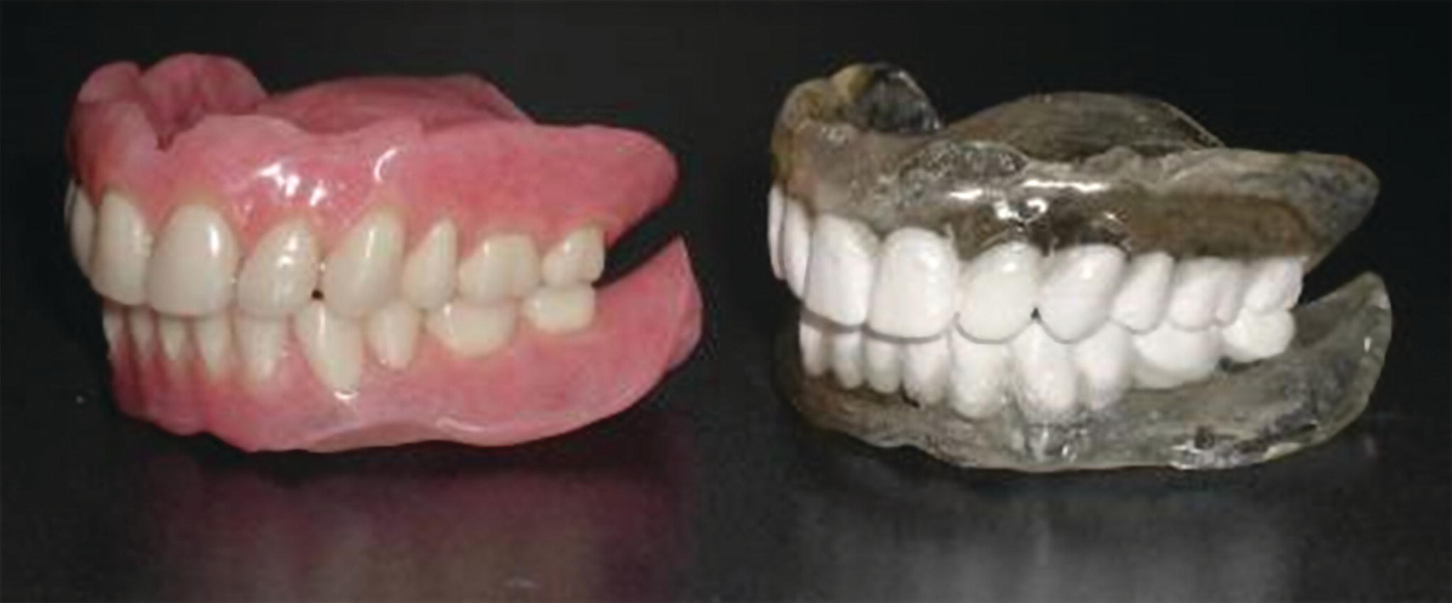 Photo of two teeth prostheses displaying screw‐retained (left) vs. cement‐retained (right) restorations.
