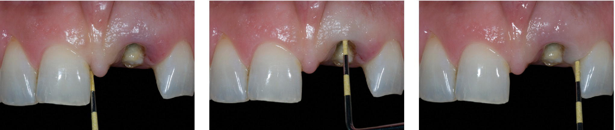 Three photos of upper set of teeth with missing left central incisor depicting osseous–gingival tissue relationship evaluated by bone sounding.