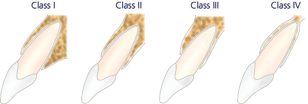 Illustration of four different classes of sagittal root position each labeled starting from (left to right) Class I, Class II, Class III, and Class IV.