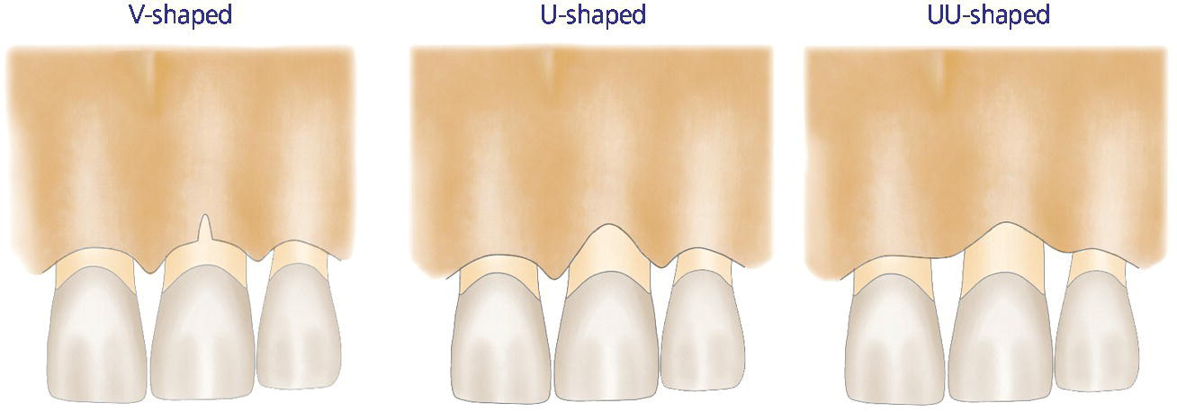 Illustration of facial bone defect classification: U-shaped defect (left), V-shaped defect (center), and UU-shaped defect (right).
